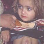 Nur, 2 anni, ferita nel dicembre 2004 all'addome, è in attesa di una nuova operazione. Foto scattata a Beit Hanun nell'aprile 2005.